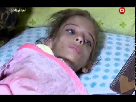 أم عراقية تعذب ابنتها بقلع الشعر ونزع الأظافر… والتفاصيل الأخرى أكثر فظاعة