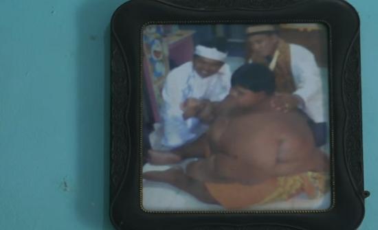 هل تتذكرون أسمن طفل في العالم.. شاهدوه بعدما خسر فقد 76 كيلوغراماً!