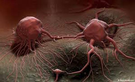 الخلايا السرطانية تموت في 42 يوماً بسبب هذا العصير فقط