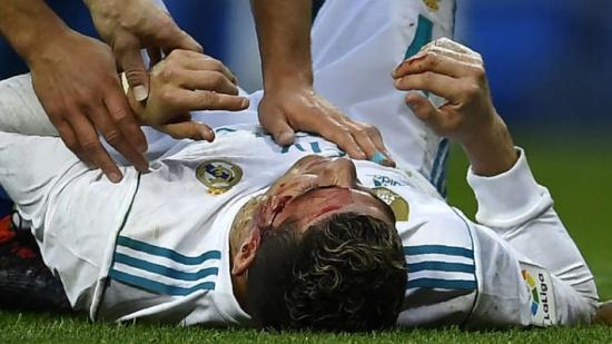 """كريستيانو رونالدو احتاج لغرزتين أو ثلاث لإغلاق الجرح في وجهه """" فيديو """""""