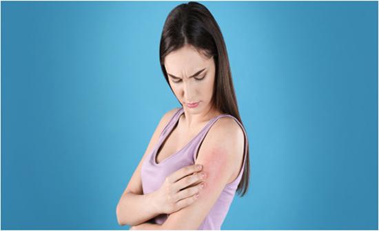 مصابةٌ بالأكزيما؟ 5 نصائح ضروريّة قبل السّباحة!