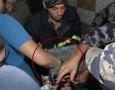 بالصور : اصابة شاب علقت يده بماكنة تقطيع عجين في إربد