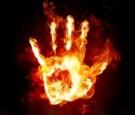 الزرقاء: شاب يشعل النار في نفسه .. وحالته سيئة