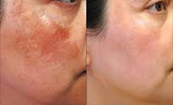 4 نصائح للقضاء على تصبغات الجلد