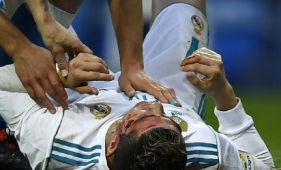 شاهد.. رونالدو يستعمل الجوال لمعاينة وجهه بعد تعرضه لاصابة قوية!