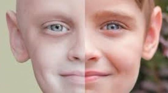دراسة: تزايد البشر الذين يتجاوزون إصابتهم بالسرطان