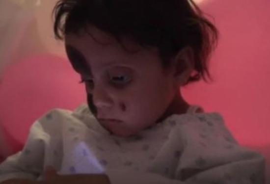 أحرق الصقيع وجهها وصارعت الموت على جبل غطته الثلوج.. قصة طفلة سورية فقدت عائلتها خلال اللجوء إلى لبنان