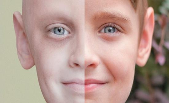 الأردن : 5 آلاف حالة سرطان جديدة كل عام