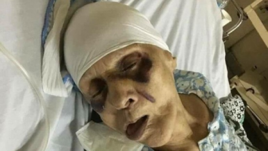 مسنة مصرية عذبها ابنها حتى الموت إرضاء لزوجته