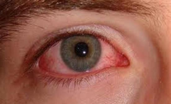 سرطان العين... إشارات لا تتجاهلوها أبداً!