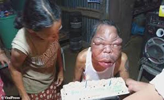 فيديو : تضخم في وجه رجل بسبب مرض غريب يمنعه من الرؤية