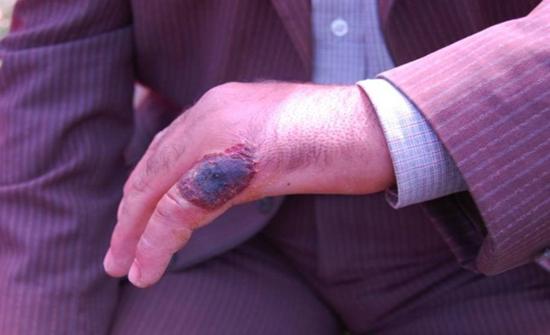 14 إصابة بالجمرة الخبيثة الجلدية في الصين
