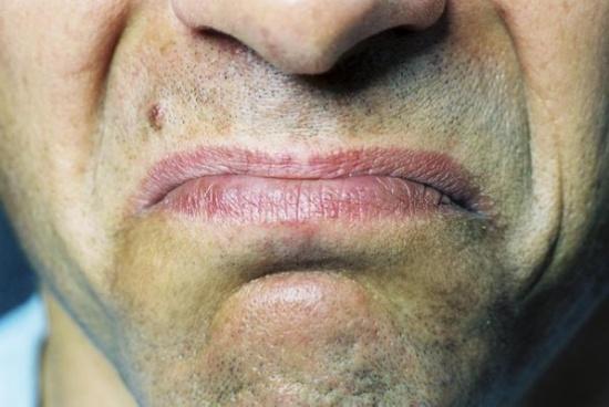 هل تشعر بـ طعم معدني في فمك بعد تناول الطعام؟ تعرّف على السبب