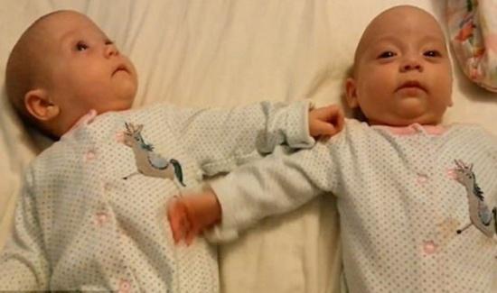 """أنصت جيدا لهذا الفيديو.. هل تقول هذه الرضيعة لأختها التوأم """"I love you""""؟"""