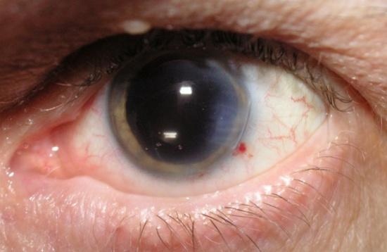 تعرف على 7 أعراض قد تظهر على عينيك.. ودلالاتها