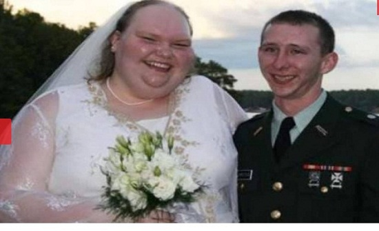 """بالصور الصادمة - هل تتذكرون """"أقبح عروس في العالم""""؟ لن تعرفوها بشكلها الجديد -"""