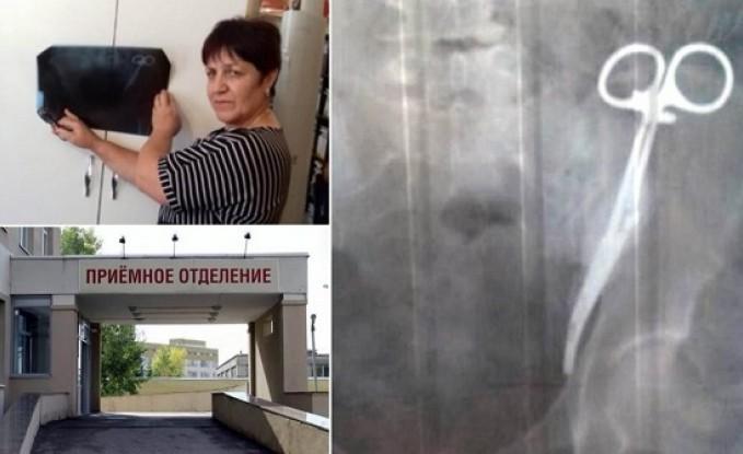 بعد 23 عامًا من إجرائها عملية قيصرية.. امرأة تكتشف مقصًا جراحيًا داخل بطنها (صور)