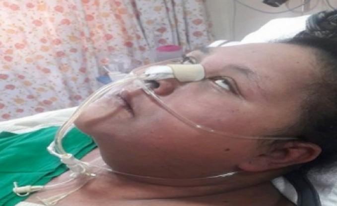 """المصرية صاحبة """"النصف طن"""" تصاب بالشلل التام.. وشقيقتها تتهم الطبيب الهندي بالخداع"""