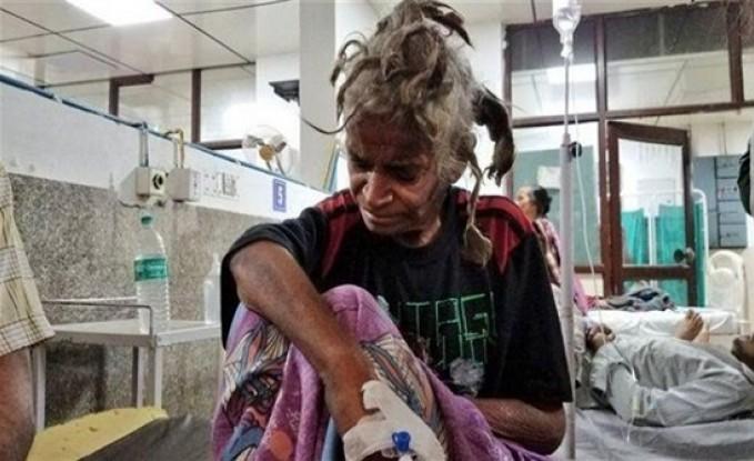 الشرطة تحرر فتاة حبسها شقيقها عامين فى الهند ..صور