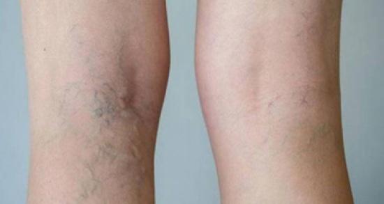 علاج طبيعي للقضاء على دوالي الساقين.. مكوناته في مطبخك!