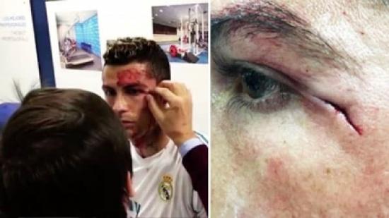 فيديو: كادَ أن يفقدَ عينه.. هكذا كانت ردّة فعل والدة وصديقة رونالدو بعد إصابته الخطيرة
