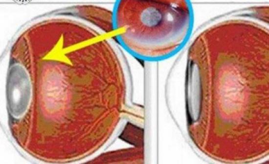 مشروب يساعد علي تقوية البصر وتحسين الرؤية