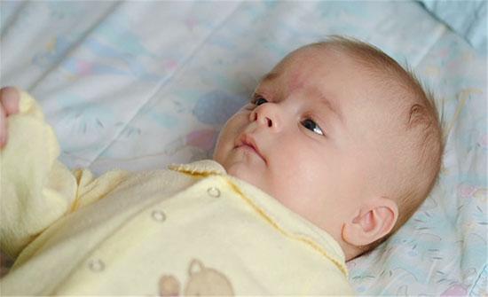 كيف أعرف أن طفلي الرضيع مصاب بحساسية القمح؟