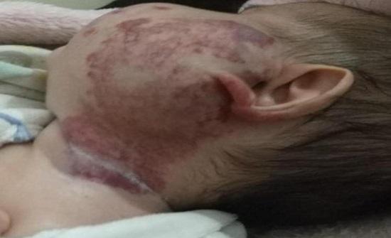 علاج وحمة دموية مستعصية في مستشفى الأمير علي