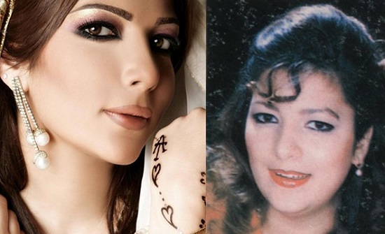 صور: هوس الأنف.. المشاهير قبل وبعد جراحات تجميل للأنف بعضها كان كارثي