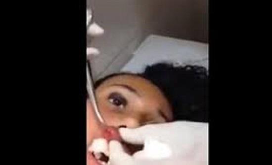 بالفيديو : لقطات صادمة للحظة استخراج دودة عملاقة من شفاه فتاة