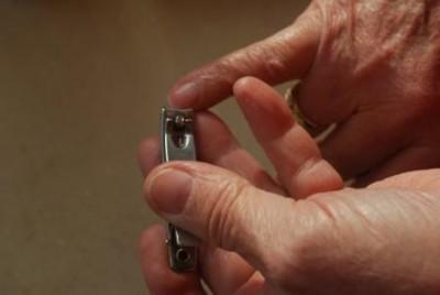 ما هي المخاطر الصحية التي تنتج عن قضم الأظافر؟