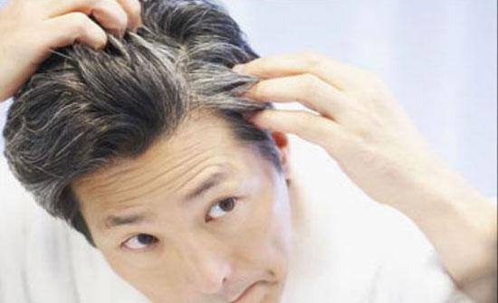 عادات خاطئة تسرع ظهور الشعر الأبيض