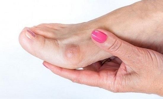 علاج ثوري لانتفاخات القدمين خلال 30 دقيقة