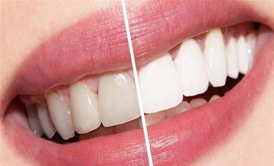 لتبييض الاسنان مخاطر لا يعرفها أحد... إحذروها!