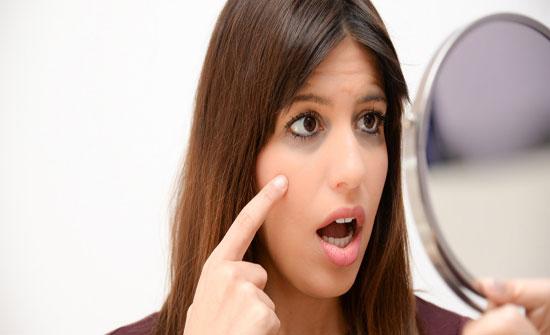 الهالات السوداء تحت العينين.. دليلٌ على هذه الأمراض!