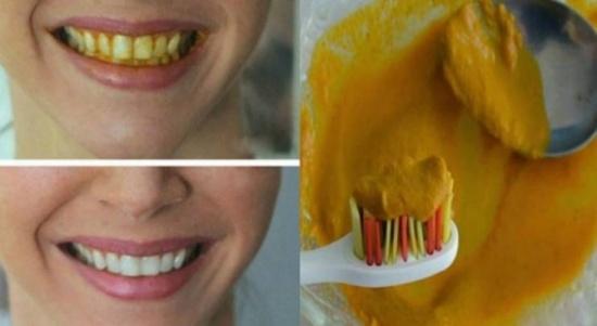 احصلوا على أسنان بيضاء وبشكل فوري باستخدام مكون واحد فقط!