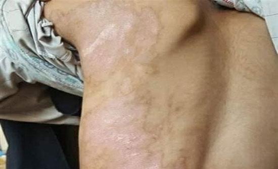 شاهد بالصور :  في بلد عربي : قصة تعذيب أب لأطفاله كسر يد طفلته وسكب شاي مغلي على ابنه