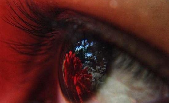ما هو لون العيون المرتبط باكتئاب الشتاء؟