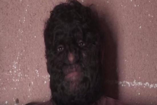 فيديو وصور: حقيقة وليس خيال.. الرجل الذئب موجود وهكذا يعيش حياته!