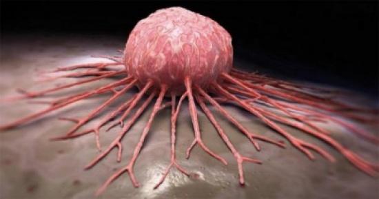 كل الشعب اللبناني سيموت من السرطان لهذه الأسباب