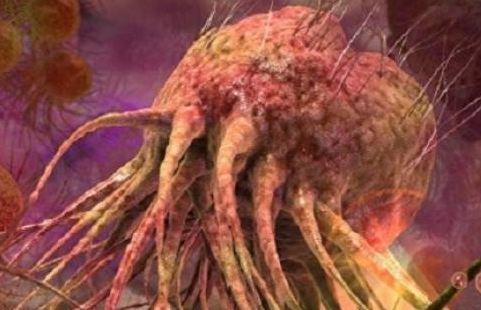مرض خطير ينتشر في العالم.. والعلماء يحذرون!