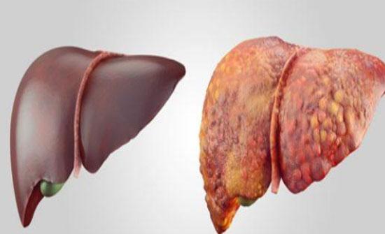 مشروب طبيعي يخلصك من السموم الضارة وتليف الكبد