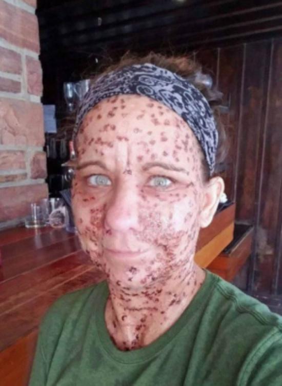 بالصور - سخروا منها ولقبوها بالسحلية... شاهدوا كيف تخلصت هذه المرأة من التشوه بسبب آلاف الأورام