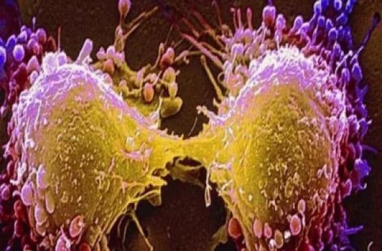 الموافقة على علاج جديد لسرطان المعدة.. وهذه آثاره الجانبية!