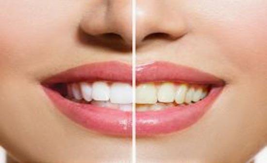 كيف تتخلصون من اصفرار الأسنان بطرق طبيعية؟
