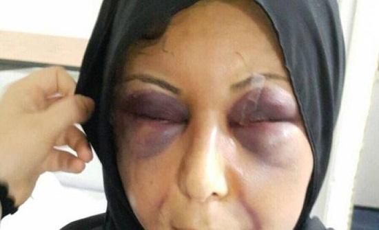 فيديو  بحريني يدق رأس زوجته ويسرق طفلتها