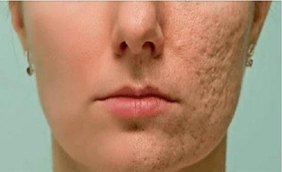 ضعوا هذه الوصفة على أي ندبة أو تجاعيد أو بقعة على جلدكم… وستختفي !