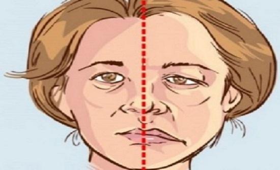 """هل وصل """"ضغط الدم"""" مرحلة الخطر؟ علامات على الوجه لا تتجاهلها"""