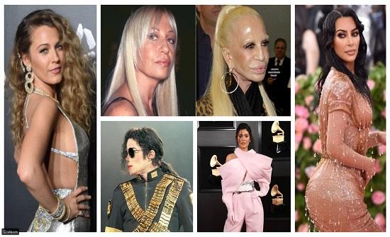صور :  أغلى عمليات التجميل التي قام بها نجوم هوليوود