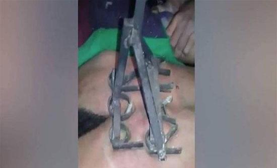 """فيديو- لصّ ينال عقوبة قاسية... """"الكيّ"""" على ظهره العاري!"""